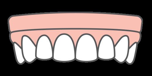 Illustration of implant dentures